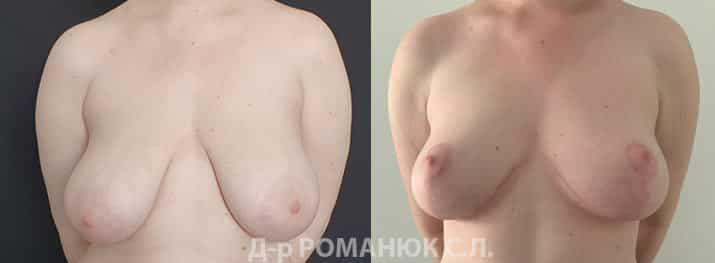 Уменьшение груди Одесса цена