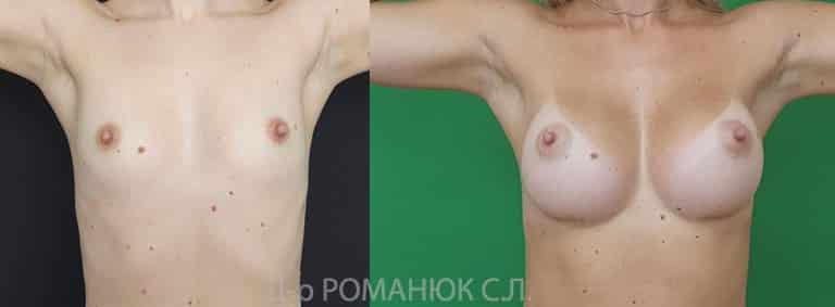 Увеличение груди. Одесса. Цена. Романюк. Фото 2.