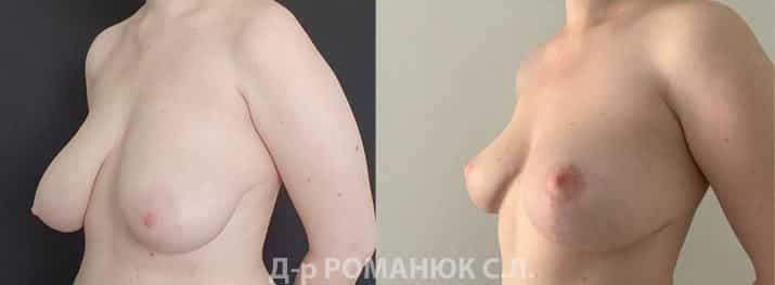 Уменьшение груди в Одессе. Романюк С.Л.