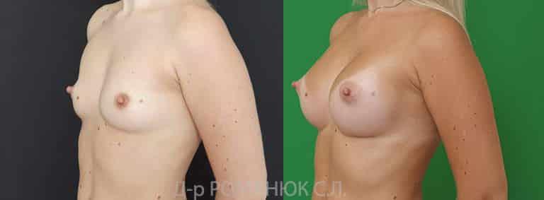 Увеличение груди (молочных желез) круглыми имплантатами. Одесса цена Украина Романюк