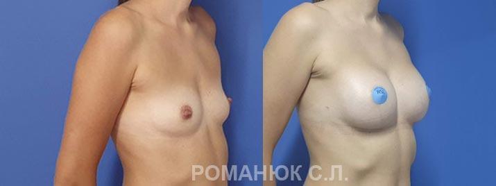 Увеличение груди анатомическими имплантатами Ментор 350 Одесса цена Романюк С.Л.