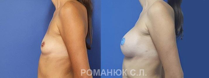 Увеличение груди анатомическими имплантатами Ментор 350 Украина цена