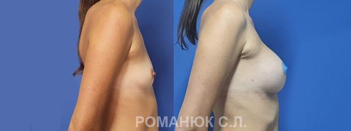 Увеличение груди анатомическими имплантатами Ментор 350 Украина