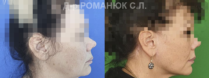 Подтяжка лица и шеи Одесса - цена