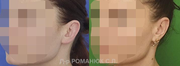 Вторичная отопластика (пластика ушей) Одесса
