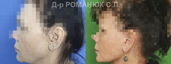 Подтяжка лица и шеи Одесса - цена Романюк