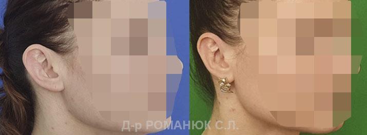 Вторичная отопластика (пластика ушей) Одесса цена